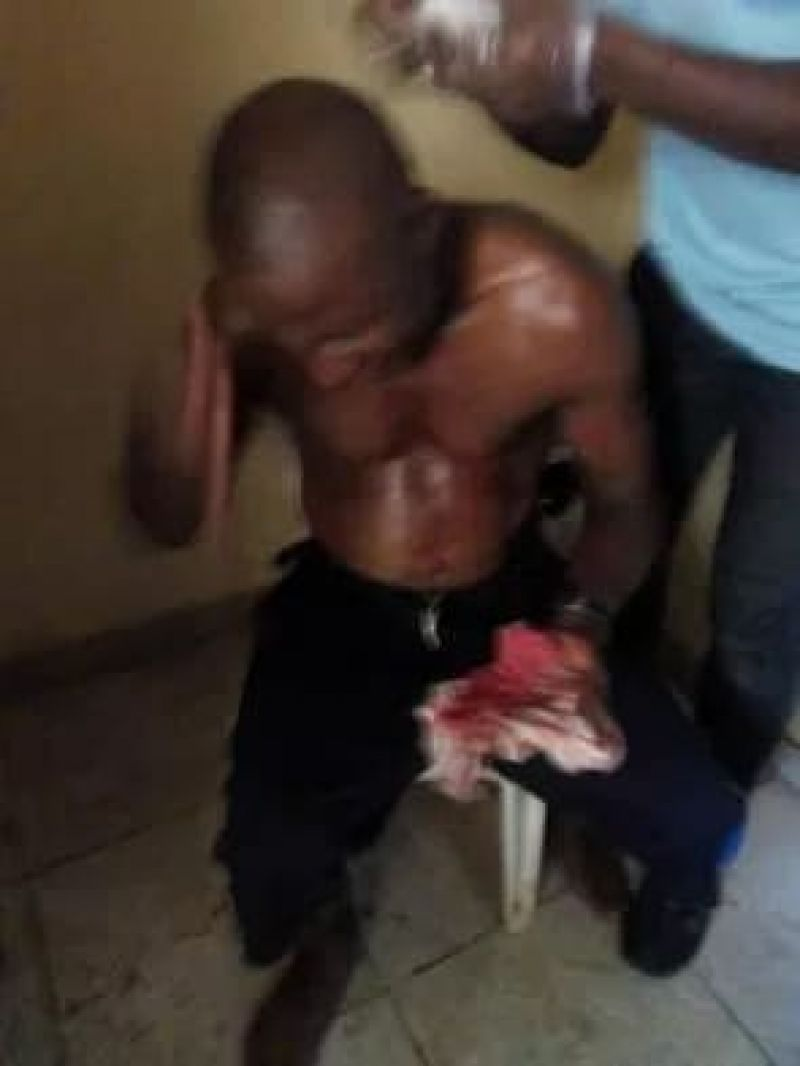 Photo shows battered referee Nwanesi receiving treatment.